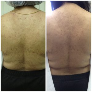 SilkPeel Dermal Infusion Body dunkirk asthetics