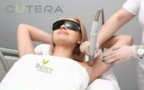 laser treatments dunkirk aesthetics